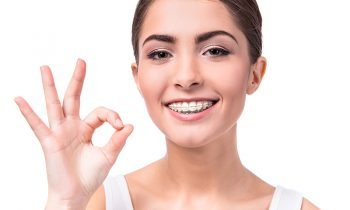 woman with white clear ceramic braces