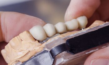 dental technician preparing dental bridge